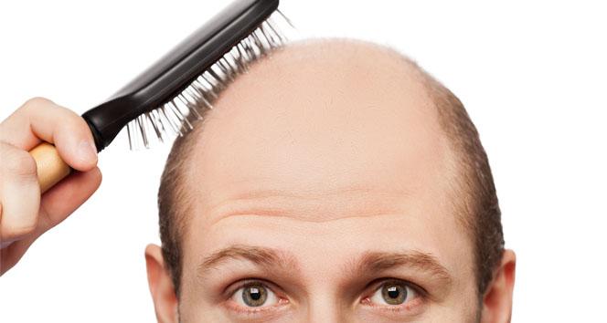Saç ektiren erkeklerin öz güveni artıyor