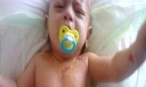 6 aylık Alpaslan bebek yaşam mücadelesi veriyor