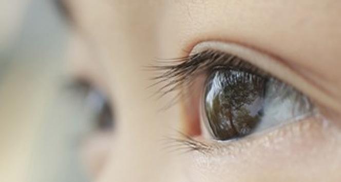 Kaybedilen Göze Yüz Güldürücü Tedavi: Göz Protezi