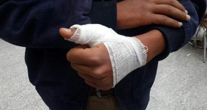 Köpeğin saldırdığı Suriyeli genç yaralandı