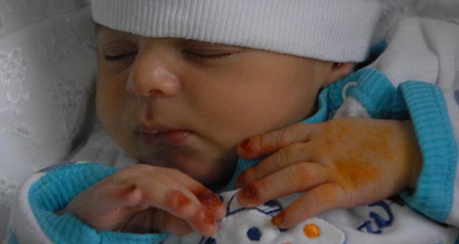 15 günlük yavrusu, iki evladını kaybettiği hastalığın pençesinde