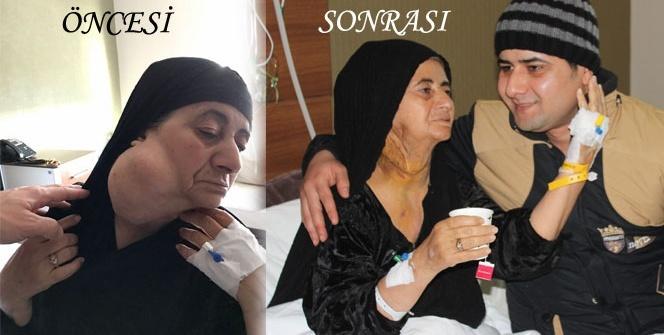 30 yıl boyunca boynunda 1 kilo tümör ile yaşadı