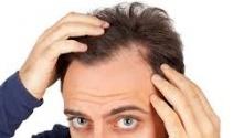 Saç dökülmesi erkekleri vuruyor