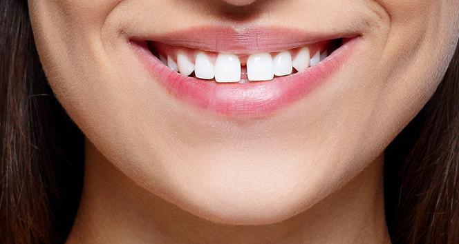 Aralıklı dişler sadece estetik bir sorun mu?