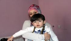 2.5 yaşındaki otizmli Tufan tedavi edilmezse gözlerini kaybedecek