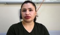 Silikon faciası kurbanı hemşirenin estetik uzmanı kuaför çıktı