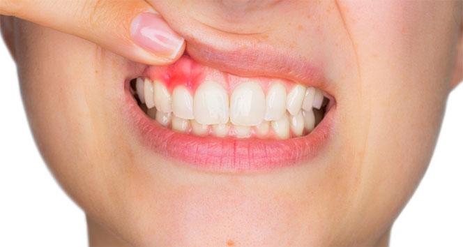 Diş etindeki renklenmeler ne anlama geliyor?