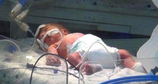 Annesi öldürülen bebeğin hayati tehlikesi sürüyor