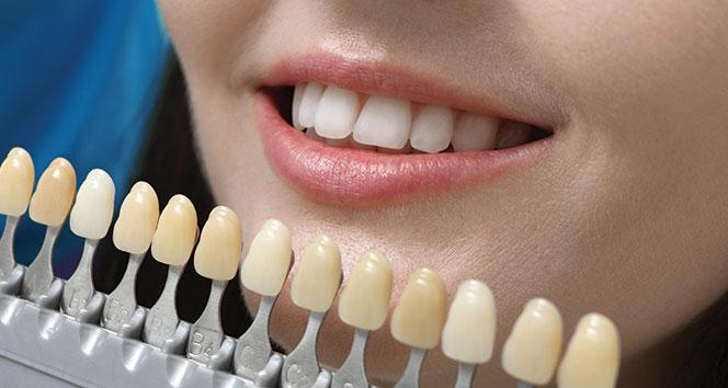 Doğal dişin yerini hiçbir diş alamaz