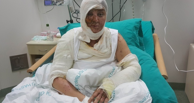 Tecavüz etmek istediği Azeri kadını kezzap ile yaktı