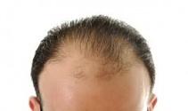 Saç ekiminde neye dikkat edilmeli  Saç ekimi zararlı mı?