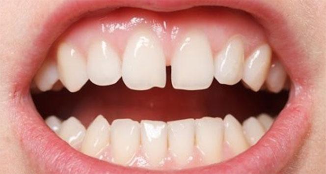 Zirkonyum diş kaplama nedir?  Zirkonyum tedavisi nasıl yapılır? Zirkonyum ile ayrık dişlerinizden kurtulun