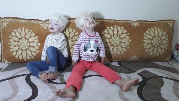 Albino kardeşler yardım bekliyor | Albino hastalığı nedir?