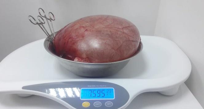 Karnından 7,5 kiloluk kist çıktı