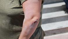 Kırşehirde broşür dağıtan CHP Kadın Kolları Başkanına saldırı