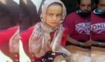 Türk doktorlar protez bacak için Maya'yı arıyor
