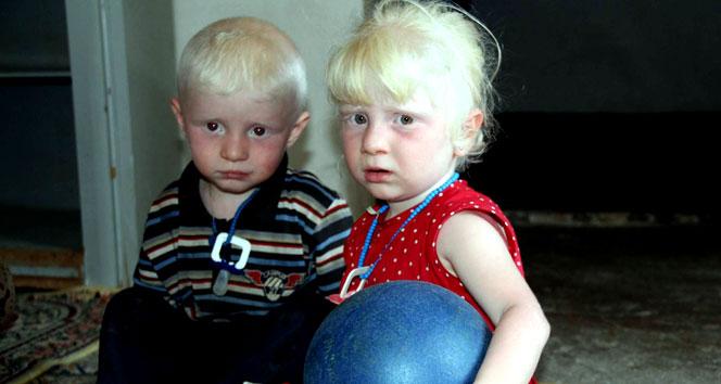 2 yaşındaki Suriyeli ikizlerin kararan dünyası aydınlığı bekliyor